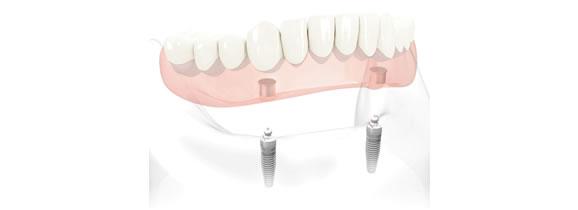 Implant stabilised denture