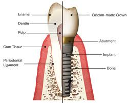 The Spotlight On Dental Implants
