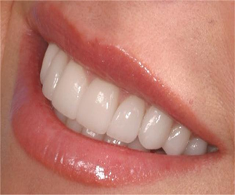Sensitive Teeth – Q&A's