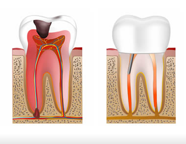 Understanding The 6 Stages Of Tooth Decay