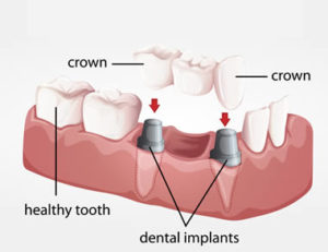 Multiple dental implants