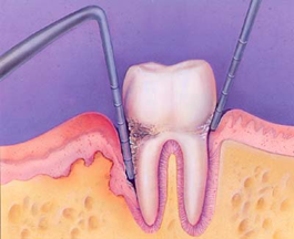 overview of periodontal treatment